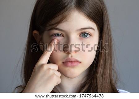 a little girl has an eye pain, eye injury, conjunctivitis, allergies, a child has swollen eyes