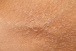 A macro view of human skin filling the frame, details of the lines and cracks and flaky shedding skin, skincare and dermatology concept with room for copy.