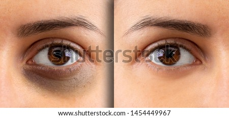 A macro view on the eye of a young lady. Showing before and after suffering from dark circles beneath the eye. Bruising is seen on the left and flawless complexion on the right. #1454449967
