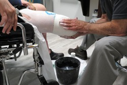 A male prosthetist wraps a plaster cast around the leg stump (amputated limb) of an disables amputee veteran in a wheelchair.