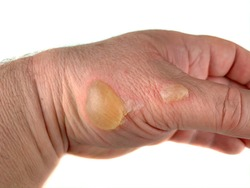 A man burned his hand with hot oil. It is a second degree burn. Concept: skin burns