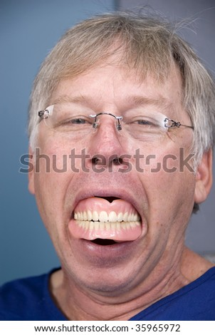 A man displays his false teeth (dentures) which shows what happens when you don't have good dental hygiene. - stock photo
