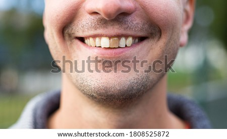 A man of Caucasian appearance smiles with a damaged yellow tooth and light stubble. Focus on the teeth. Dental problems, dead teeth, enamel whitening, aesthetic restoration, body positive.