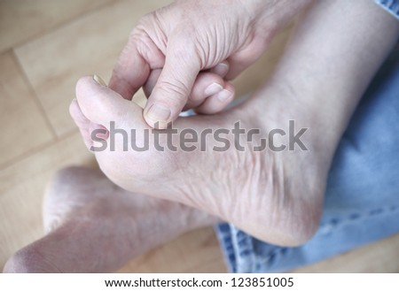 a man scratches the fungal infection between his toes
