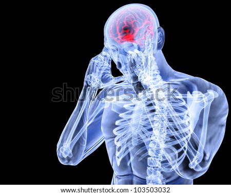 a man with a headache under x-ray.