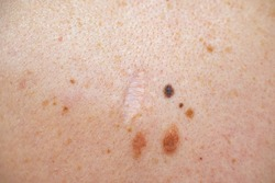 A melanocytic nevus also known as nevocytic or nevus-cell nevus and commonly as a mole is a type of melanocytic tumor