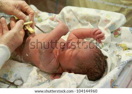 A newborn African-American girl getting her umbilical cord clamped.