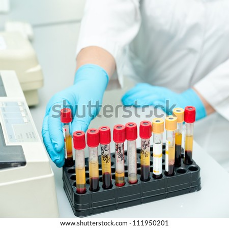 a nurse arranges test tubes with blood on a tray
