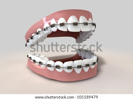 A parted set of human teeth with metal braces fitted set in gums on a light background