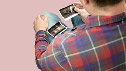 A patient with an ultrasound of the prostate in his hands is studying his disease, a young man in a clinic with a prostate adenoma with an ultrasound in his hands, the genitourinary system