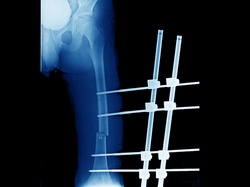 A plain x-ray of femur showing open fracture of femur that treated by external fixation. The fracture needs internal fixation with an implant when patient has stable vital signs.
