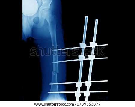A plain x-ray of femur showing open fracture of femur that treated by external fixation. The fracture needs internal fixation with an implant when patient has stable vital signs. Foto stock ©