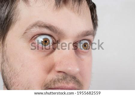 A pop-eyed man with Graves' disease toxic diffuse goiter, hyperthyroidism. Enlarged thyroid gland and exophthalmos bulging eyes. Endocrine system disease, endocrinology. Stock photo ©