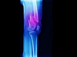 A radiograph of knee showing closed fracture of distal femur with displacement. The patient needs open reduction and internal fixation with plate and screws.