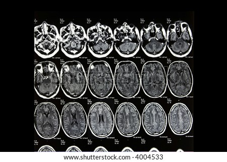 A real MRI/ MRA (Magnetic Resonance Angiogram) of the brain vasculature (arteries) in monochrome