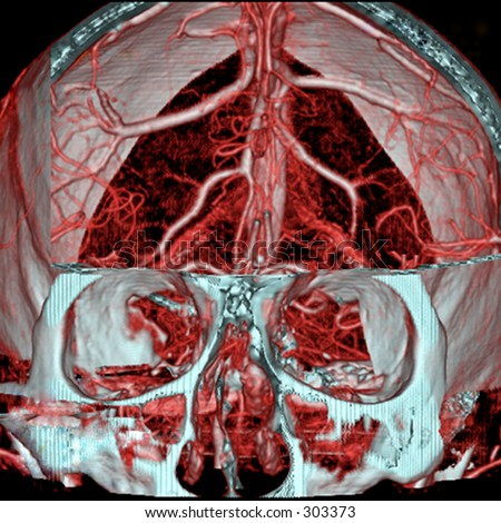 A real MRI/ MRA (Magnetic Resonance Angiogram) of the brain vasculature (arteries).  This MRI study is  often used to show/find brain aneurysms.