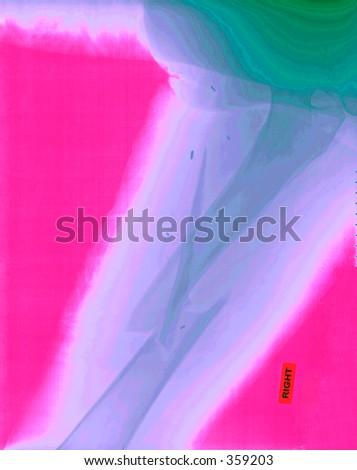 Ein wirklich xray, colorized, vom Femur eines gebrochenen Mannes von einem Motorradunfall.