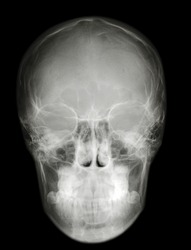 a roentgenogram x-ray photography picture of cranium scull profile