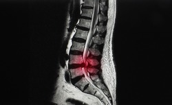 A sagittal view magnetic resonance image or MRI of lumbar spine showing ruptured intervertebral disc herniation at L4/5 level. The patient has back pain and sciatica or leg pain.