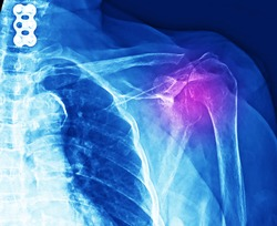 A shoulder x-ray showing superior subluxation of shoulder that caused by massive rotator cuff tear. The patient needs surgical reconstruction and repair of rotator cuff or arthroplasty.