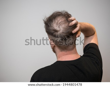A single young caucasian male checking his bald patch on the back of his head, which shows clear signs of balding and hair loss. Shot against a white background with isolated man and room for text.  商業照片 ©