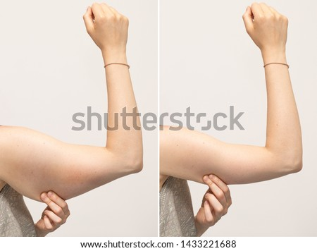 A split screen of a woman pinching the skin beneath her arm. Showing the before and after results of brachioplasty surgery, also called an arm lift.