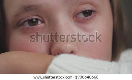 A teenage girl cries and tears run down her cheeks. The child is upset due to hormonal changes in the body. Children's nervousness from problems with peers and parents. Lifestyle soul cry. Fear and ストックフォト ©