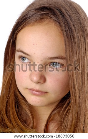 stock photo : A teenager with pimples on her face. Save to a lightbox ▼