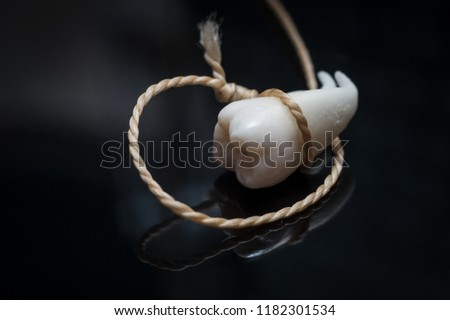 A wisdom tooth with roots tied with a thread on a black background. #1182301534