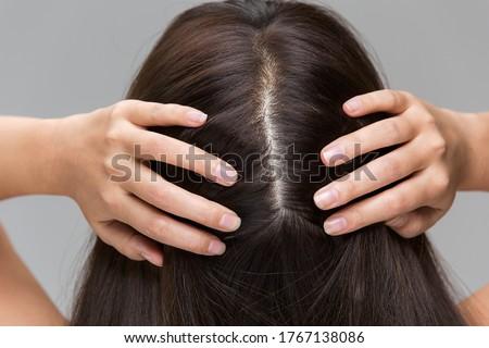 A woman is massaging her scalp. Foto stock ©