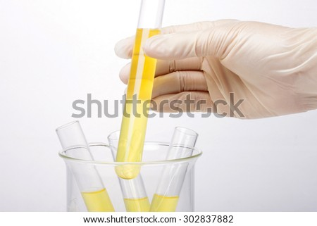 A woman(nurse, scientist) hand with (rubber) glove storage hold a test tube with yellow(urine) liquid(fluid) and beaker for chemical, health, urology at the laboratory