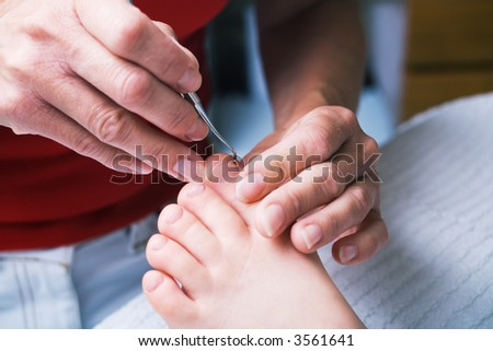 A woman performing podiatry on a girl's foot (close up)