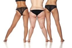a woman's legs, three women with different weights.