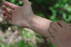 A woman scratching very itchy poison ivy while hiking in the woods