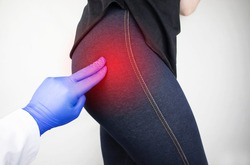 A woman suffers from pain in the buttock. The doctor diagnoses the patient piriformis syndrome, pinch of the sciatic nerve, lumbar osteochondrosis or sciatica