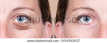 A 40 year old Caucasian woman shows the before and after results of blepharoplasty. Plastic surgery to remove dark puffy eyebags from the delicate area below the eyes.