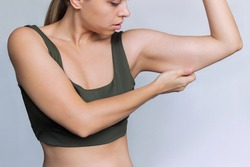 A young caucasian blonde woman  grabbing skin on her upper arm with excess fat isolated on a white background. Pinching the loose and saggy muscles. Overweight concept