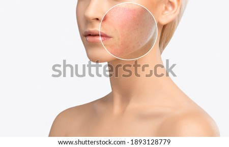 A young girl with a problem skin. Photo before and after treatment for acne and Demodecosis. Skin treatment, spa treatments. Cosmetology and professional skin care.