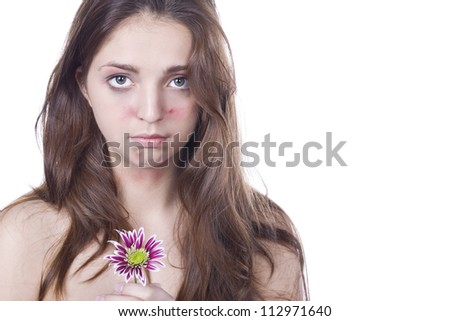 a young girl with an allergy to flowers