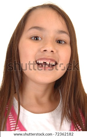 A young pretty girl six years old loosing her first teeth and showing  her mouth with the missing teeth, for white background.
