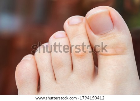 A young woman has hard corns and calluses on her toes from wearing shoes that uncomfortable and don't fit properly. Female foot. Close up view. ストックフォト ©