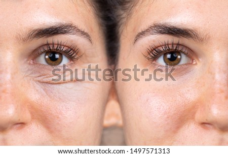 A young woman shows the before and after results of successful blepharoplasty surgery, corrective procedure to remove puffy and swollen bags beneath the eye. Stock photo ©