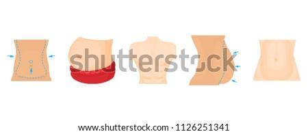 Abdomen icon set. Cartoon set of abdomen icons for web design isolated on white background