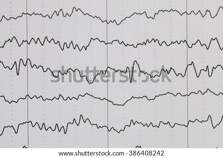 how to make an eeg abnormal
