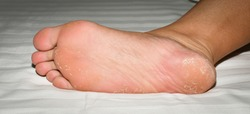 abnormal soles with peeling skin  Caused by wearing shoes that dry the feet until they are damp all the time  thus causing the fungus