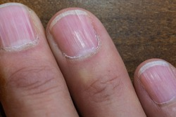 Abstract and conceptual onychomycosis, striped nail or longitudinal lines. All fingers and toes with infection, on wood background.