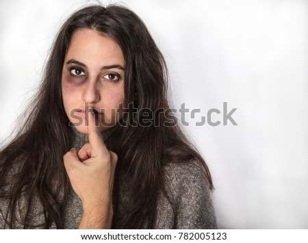 Abuser silencing his victim, a pretty woman with a black bruised eye, with his finger in a concept of domestic violence and abuse, with copy space on white #782005123
