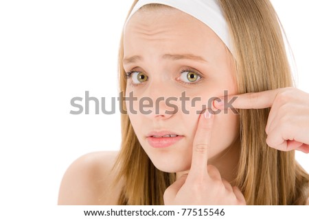 Acne facial care teenager woman squeezing pimple on white