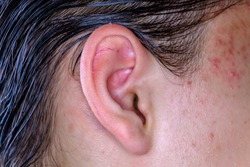 Acne on the skin of the face near the ear macro image. Male skin of the face with inflammations. Teenage Boy's ear
