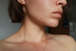 acne problem. pimple over the lip. focus on pimples. cometology. skin care